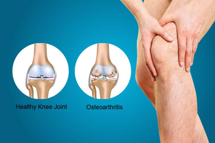milyen betegség artrózis tünetei és kezelése