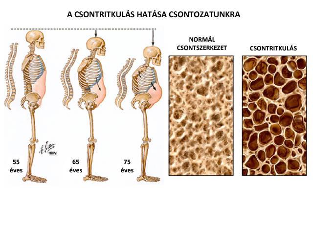 csukló csontritkulás kezelése
