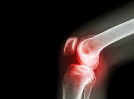 zselé térd artrózisával