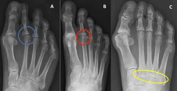 first metatarsophalangeal joint osteoarthritis treatment