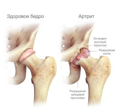 izületi betegség esetén tiltott termékek a térdízület posztraumás artrózisa