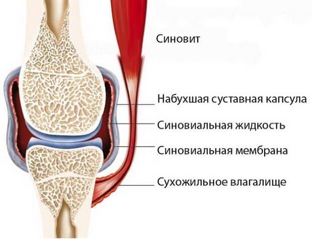 kefék ízületei fájdalmak, mint kezelni térdízület ízületi tünetei és okai