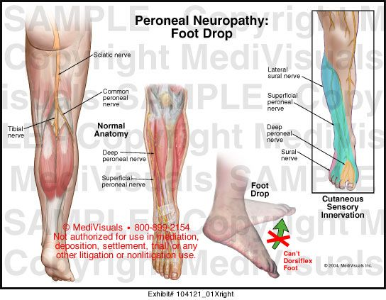ízületi fájdalom a fizioterápia után)