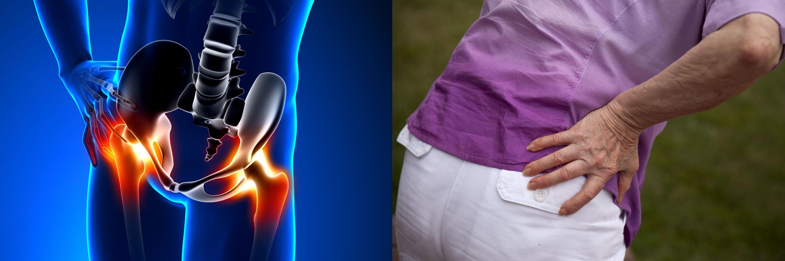 ortopéd fájdalom a csípőízületben)