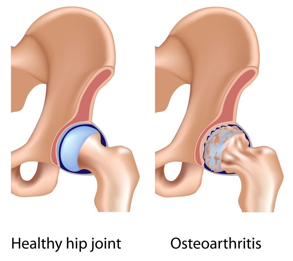 csípőízületi tünetek kezelése és kezelése
