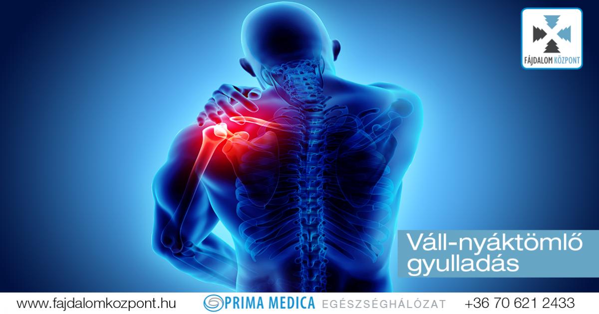Fibromyalgia - Sokarcú kórság