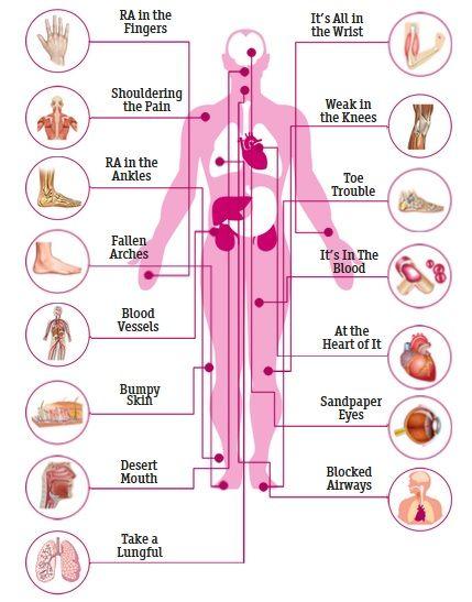 autoimmune disease rheumatoid arthritis
