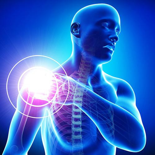 fáj a vállízület és a kar