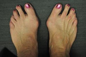 fájó ízület a kis lábujj lábánál