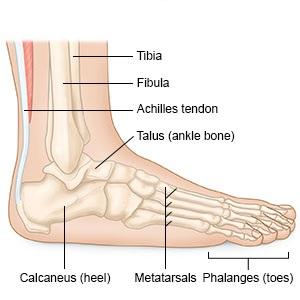 fájdalom a boka sérülés után)