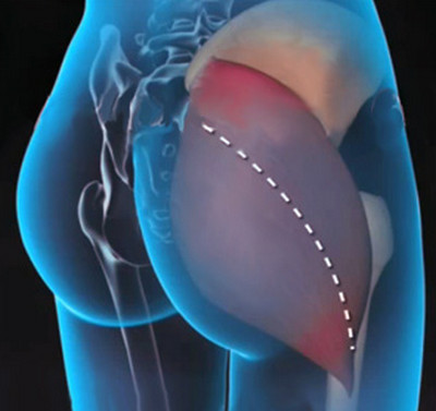 fájdalom a csípőízület nagyobb trochanterében