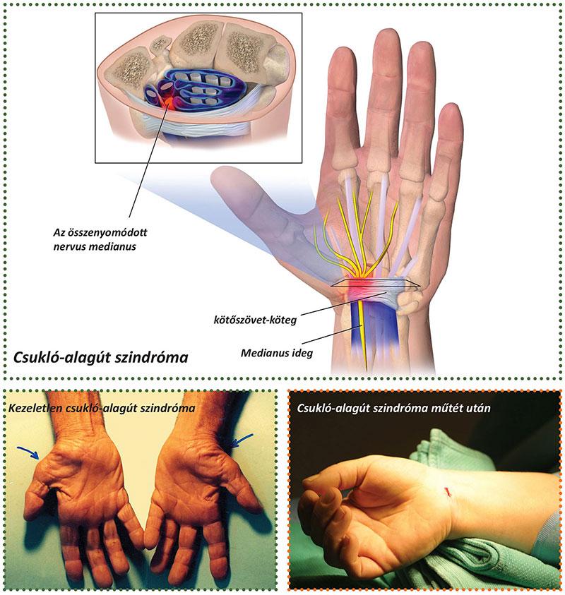 fájdalom a kéz csuklójában és az ujjakban)
