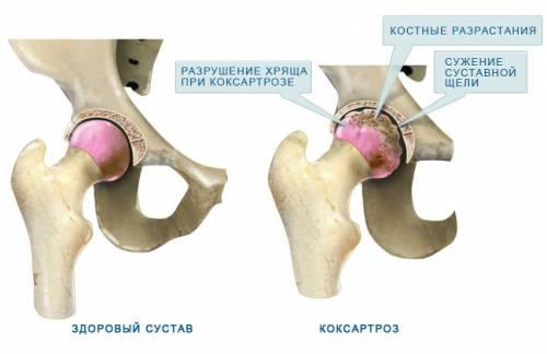gyógyszerek a csípőízület coxarthrosisához
