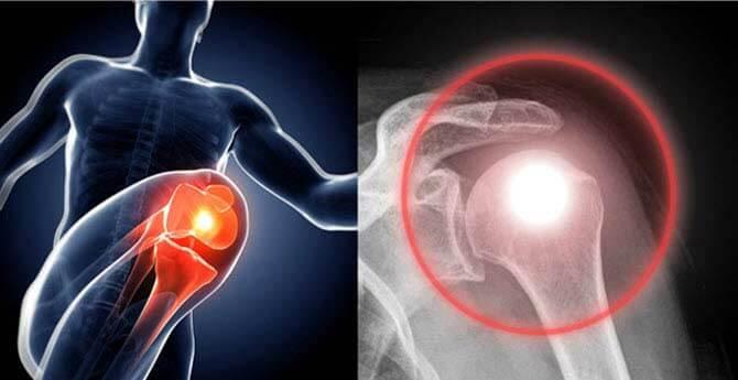 hogyan fáj a csípőízület artrózissal)