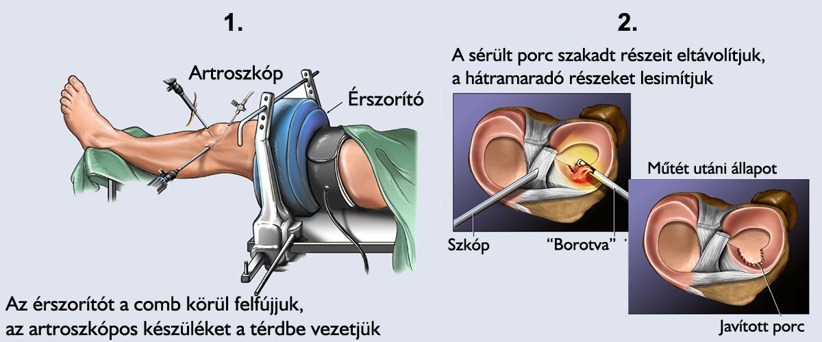 hogyan kezelhető a meniszkusz artrózisa)