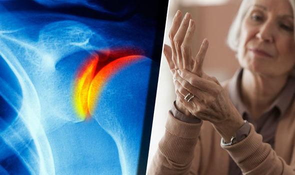 hogyan kezeljük az artrózis teraflexét)