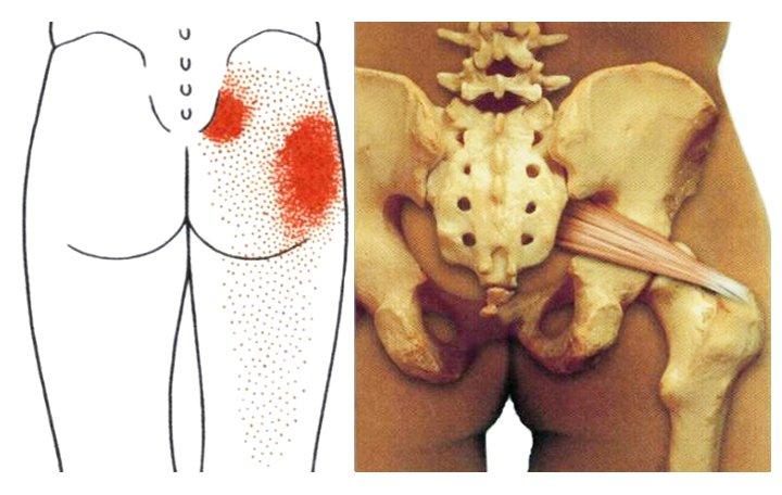 hogyan lehet kezelni az osteochondrozist és az artrózist)