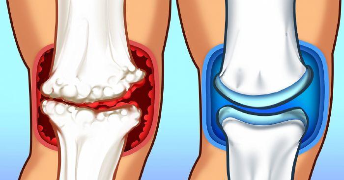 kalcium ízületi fájdalom