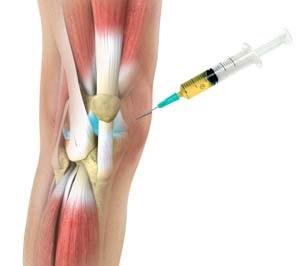 koksz-artrózis kezelése)