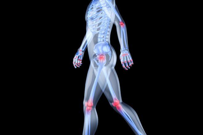 kondroitin gél az osteochondrozissal szemben