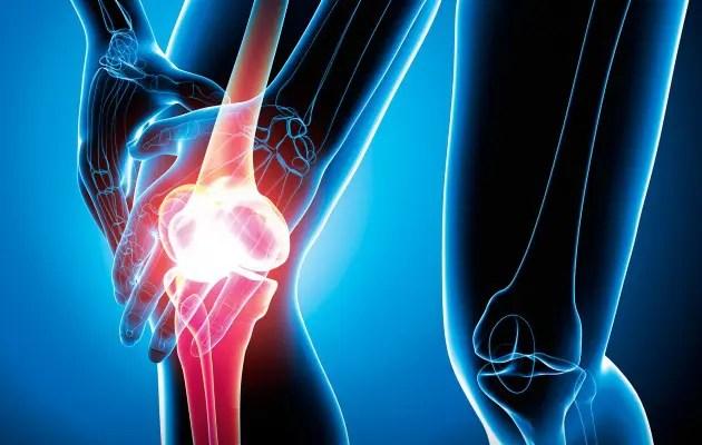 ízületi arthrosis ortopédia ütés a boka ízületében és fájdalom