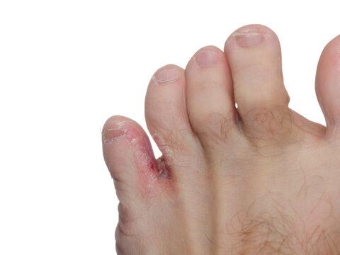 lábujjak közötti kipállás képek)