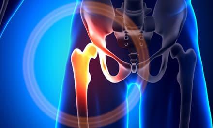 coxibs gyógyszerek gerincvelő osteochondrosishoz fáj a középső lábujj ízülete