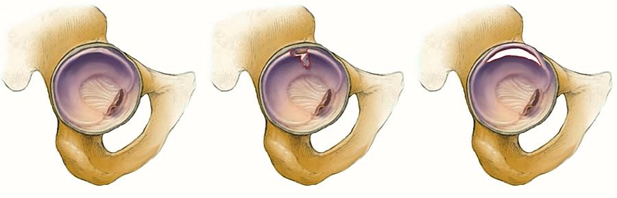 mi a csípőízületek artrózisa 2 fokkal)