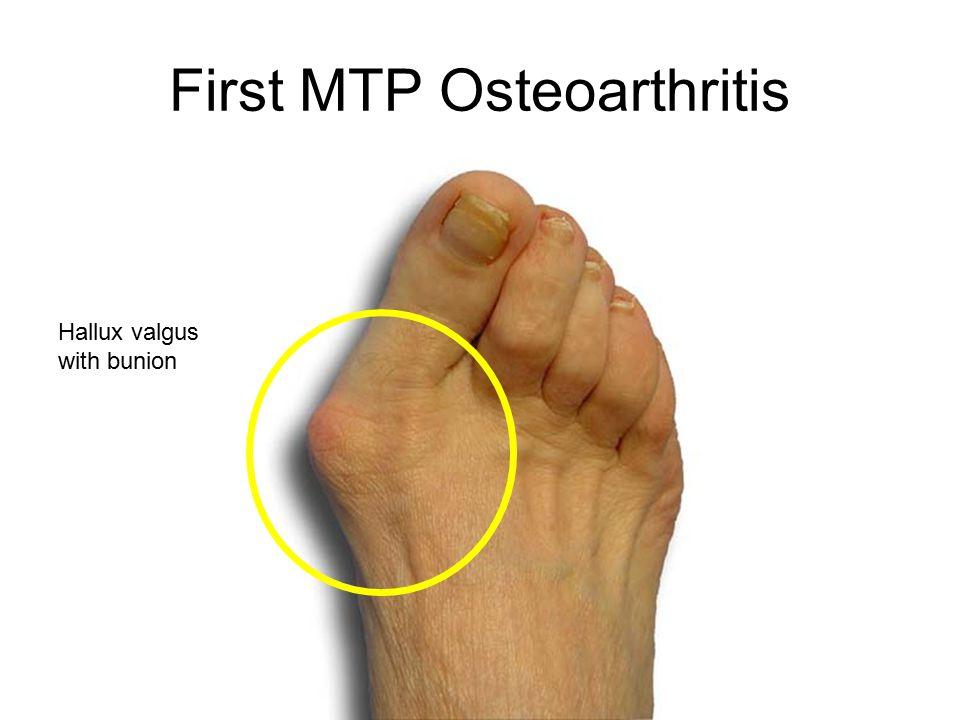 mild first mtp osteoarthritis)