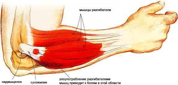 pontfájdalom a könyökízületben a boka sérülése, mint a kezelése