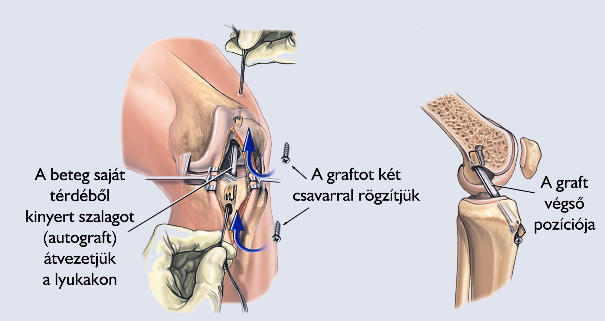 poszttraumás térdbetegségek csípőízületi gyulladás tünetei