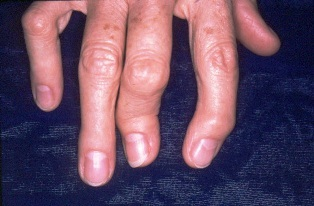 psoriasis arthritis hogyan kezelhető)