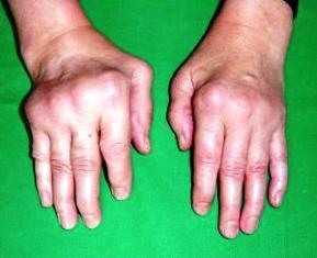 reumatikus gyulladas meniszkusztörés kezelése