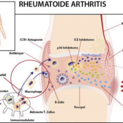 Rheumatoid Arthritis - PDF Free Download