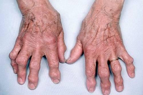 szinovitis deformáló artrózis kezeléssel)