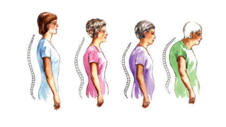 szoptatás artrózis kezelése a vállízület kenőcsének artrózisának kezelése