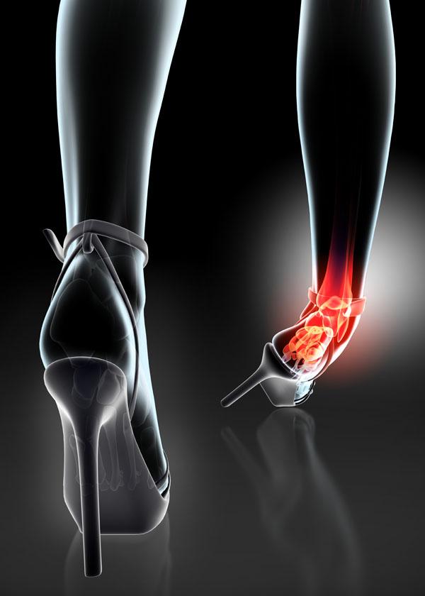 tömörítse a bokaízület fájdalmát