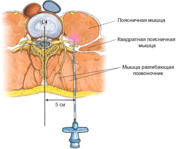 Milyen kenőcs választani az osteochondrosis kezelésénél - Arthritis July