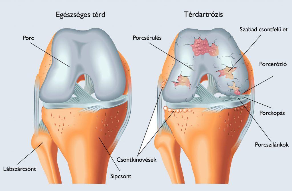 traumás fájdalom a térd belső részén