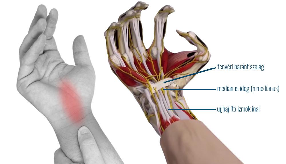 térdfájdalmi szindróma kezelése)