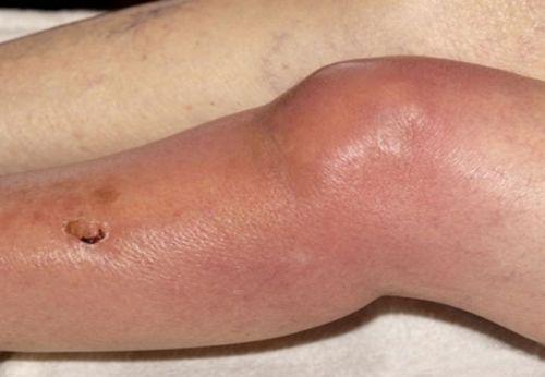 térdgyulladás tinédzserben a csukló tünetei és kezelése