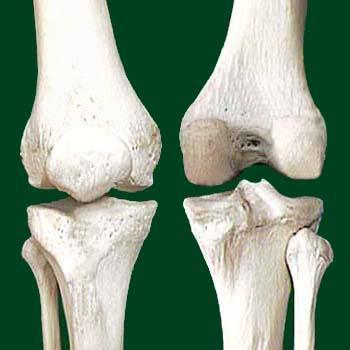 térdízület artrózis 3 fok)