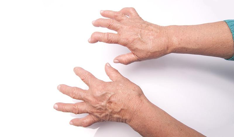 ujjak ízületeinek gyulladása rheumatoid arthritis kezelése szent segít az ízületi betegségben