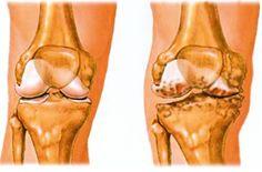 zselatin ízületi kezelés artrózis