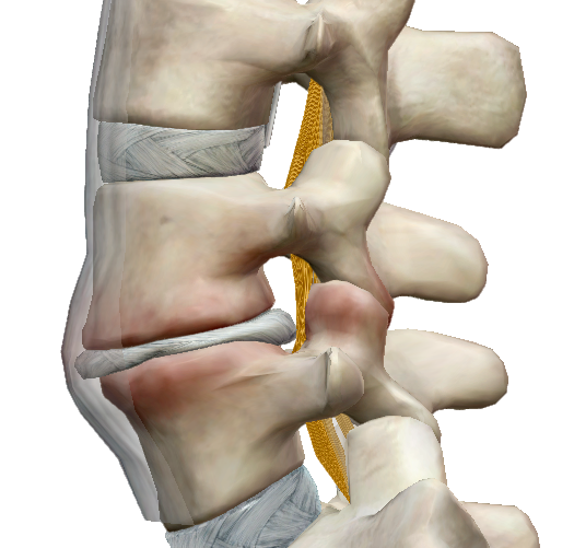 ízületi fájdalom a gerincben