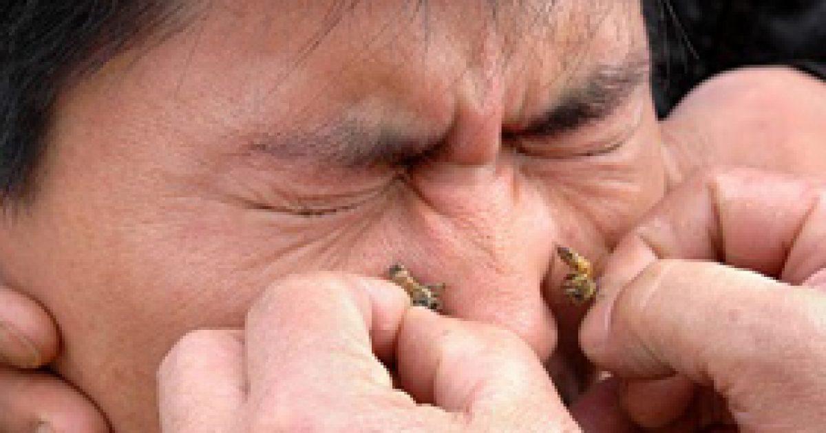 ízületi fájdalom a méh csípése után