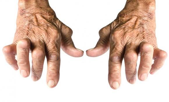 ízületi gyulladás kéz)