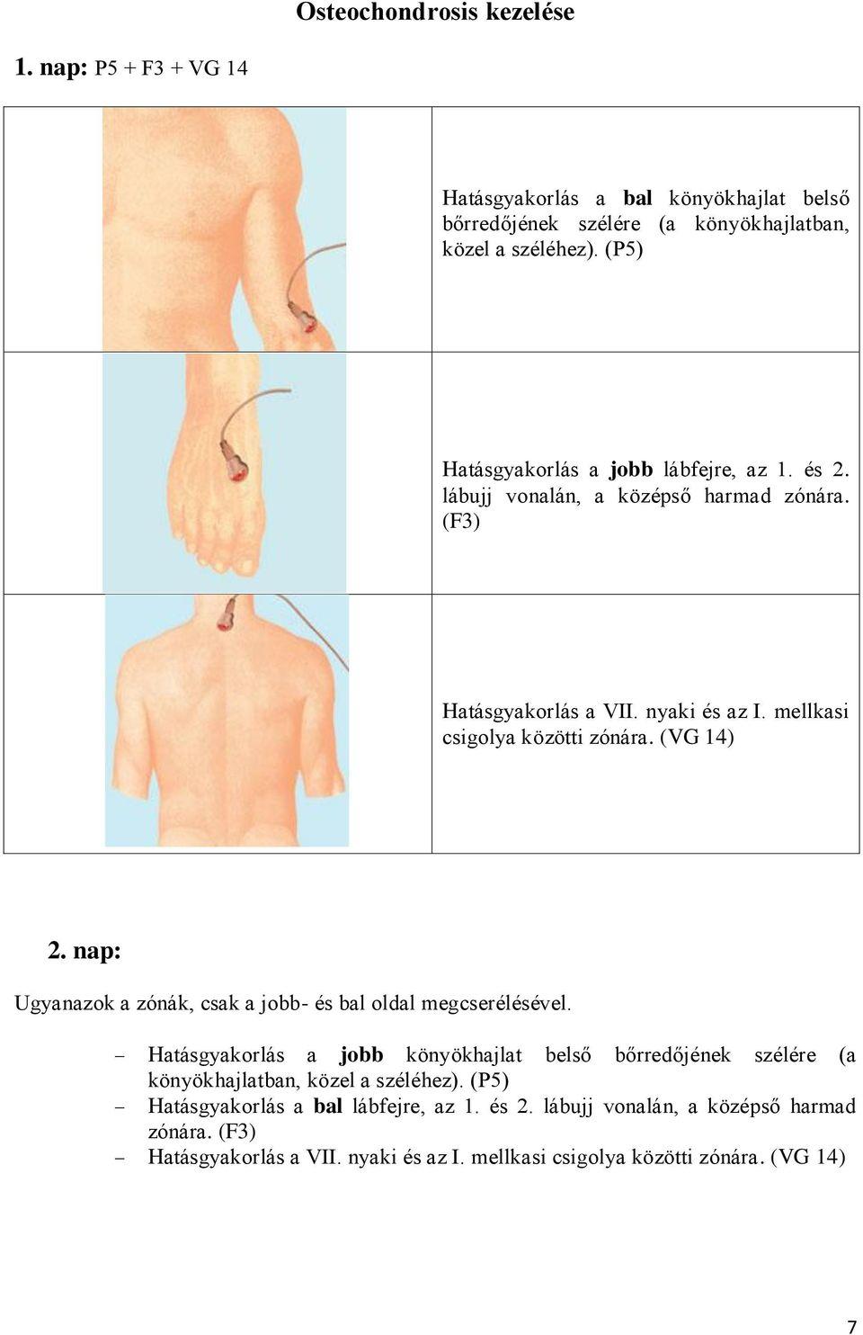 bokaízület periarthritis hogyan kezelhető)