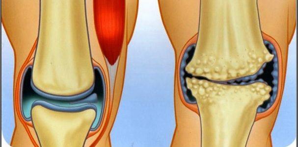 az ízületek fájnak a testmozgásból csípő íngyulladás kezelése