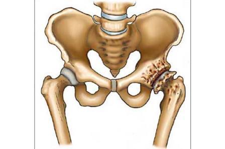 Nagy ízületek deformáló artrózisának műtéti kezelése